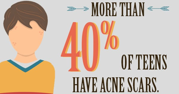 If You Want to Avoid Acne Scars, Avoid Doing This