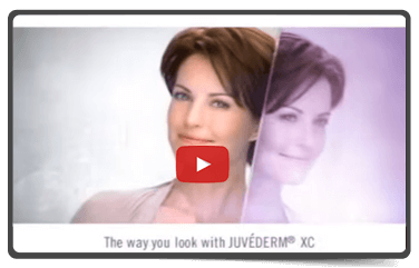 Juvederm: Smooth Gel Filler