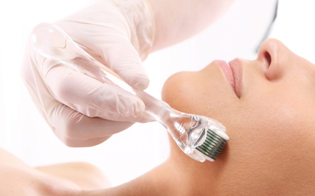 Microneedling and Dermaplaning: The Why, When & Where of these Hot Beauty Treatments