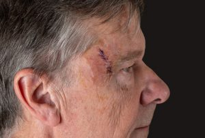 Older man with Mohs surgery wound