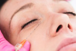 Cosmetic dermal fillers to correct dark circles