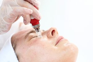 Microneedling for tear troughs