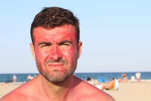 Man with sunburn on face