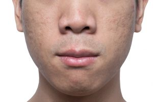 Close-up acne and scars on asian man face
