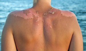 Peeling skin following a sunburn