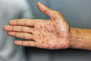 Syphilis rash on hand