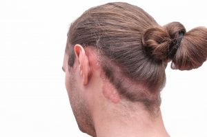 Man with scalp psoriasis on scalp and neck.