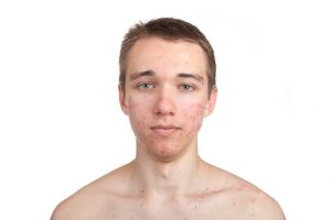 Teenage boy with acne