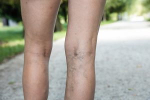 Woman with varicose veins on back of leg