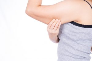 Woman with upper arm fat