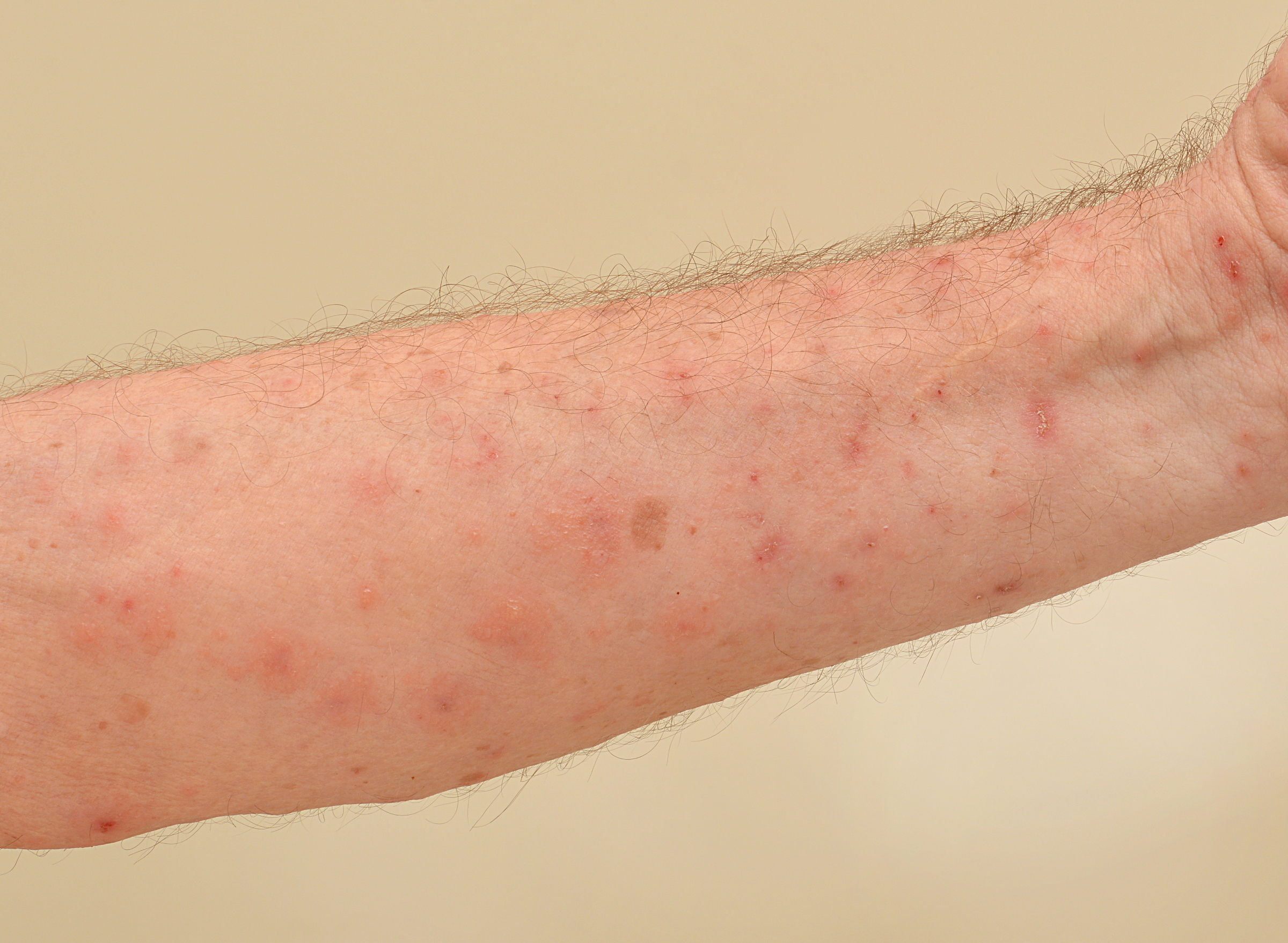 Scabies (Credit: Chuck Wagner/Shutterstock)