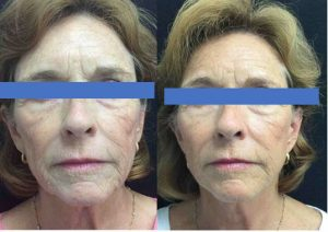 Mini neck lift before and after photos. (Credit: Water's Edge Dermatology)