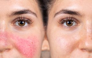 Rosacea Before-After