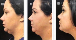 Before-and-after jowl treatment photos